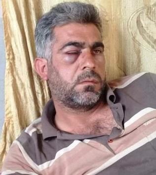 عفرين: مسلحو لواء الحمزة يعذبون سائقاً كردياً أمام عائلته
