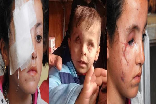 احصاء: 102 حالة إعاقة من أصل 980 مصاب حصيلة العمليات العسكرية التركية في عفرين بين كانون الثاني وآذار 2018