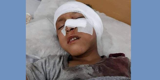 الجندرمة التركية تقتل وتصيب المزيد من الأطفال السوريين على الحدود