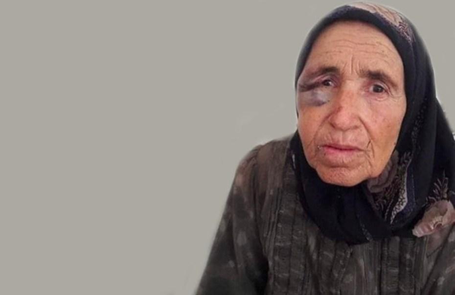 صورة لحورية محمد بكر بعد تعرضها للضرب على يد مجرمين اقتحموا منزلها في مدينة عفرين بغرض السرقة وقتلوا زوجها.