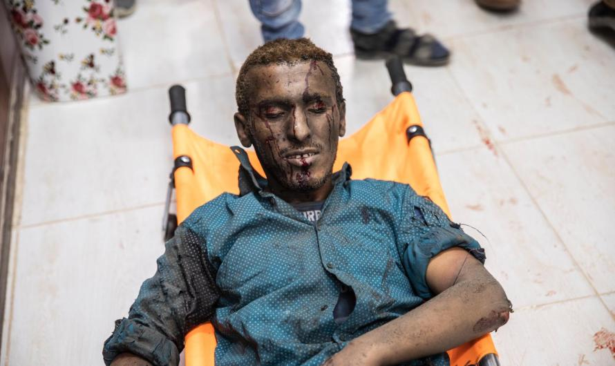 الغزو التركي قتل 218 مدنيا بينهم أطفال ومسعفون واطباء وصحفييون