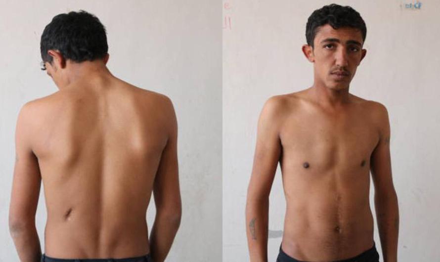 """اتهامات سرقة الأعضاء البشرية تطال مشافي تركيا مجددا.. """"سوري"""" يتهم أطباء مشفى حكومي تركي بسرقة كليته"""