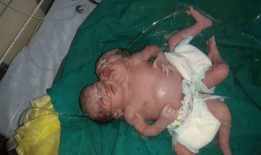 ولادة توأم سيامي في عفرين السورية