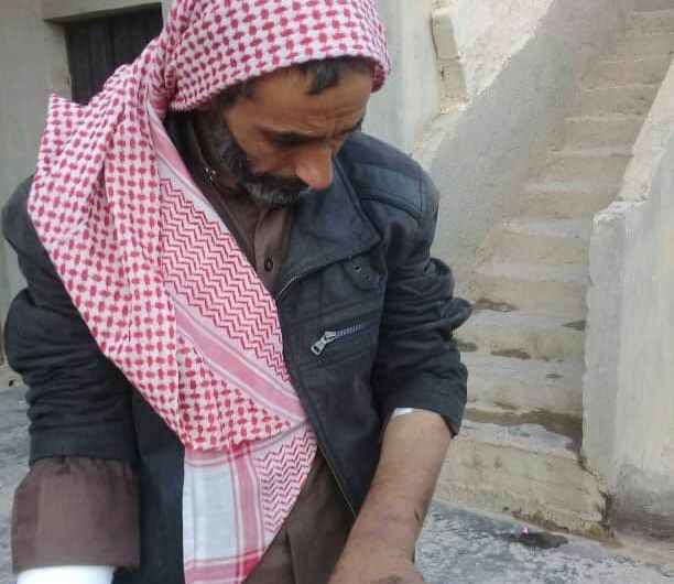 صور صادمة : عمليات التعذيب مستمرة في سجون الفصائل الموالية لتركيا شمال سوريا