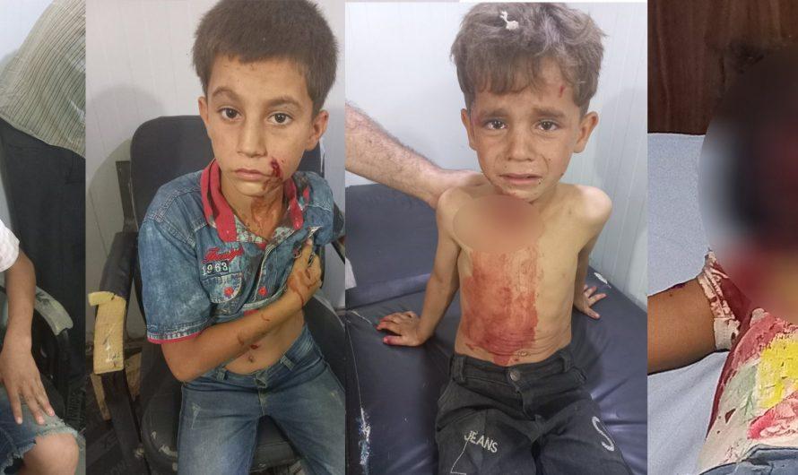 الألغام تواصل الفتك بأطفال سوريا … مقتل طفلة واصابة 3 بجروح بليغة في ريف حلب