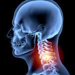 human-spine-human-neck-pain-x-ray