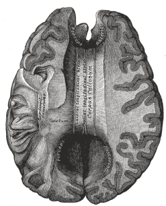 split-brain