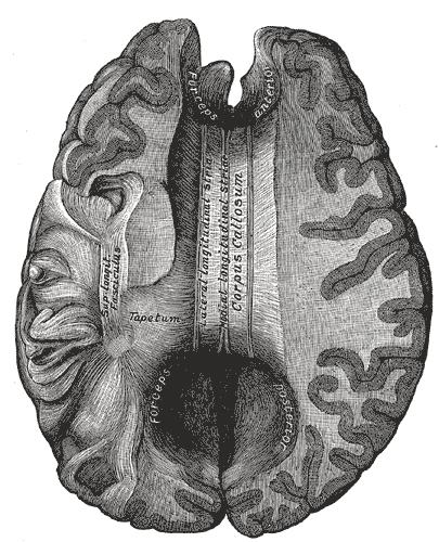 Ako predeliť mozog?