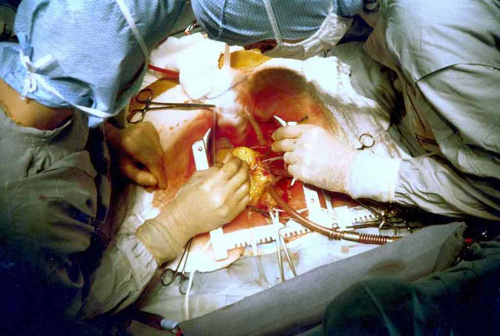 Image of a heart disease bypass operation.