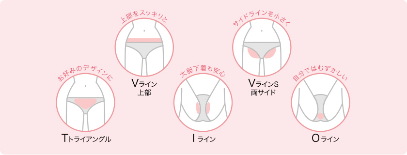 出典:epiler.jp