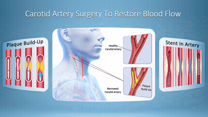 Carotid Artery Disease Treatment Riverview FL