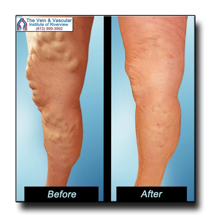 Big Varicose Veins On Legs Vein Surgery Riverview FL