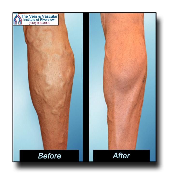 Laser Vein Treatment Results Riverview FL