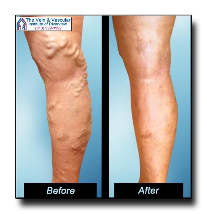 Riverview FL Varicose Veins Treatment Patient Photos