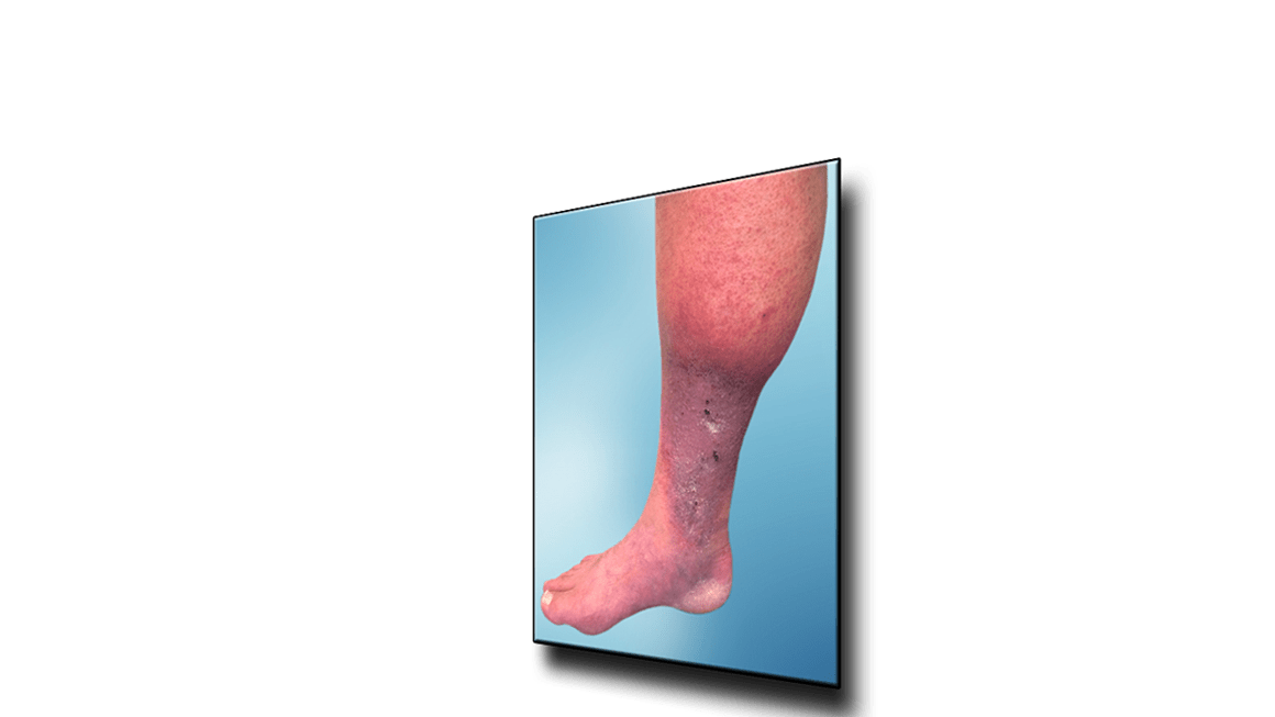 Leg Ulcers Due To Poor Circulation