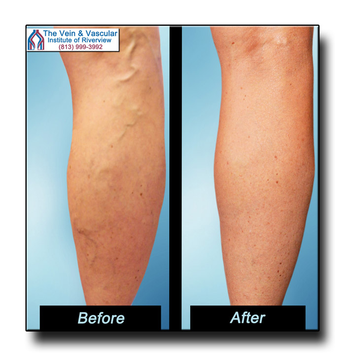 Spider Vein Treatment Riverview Before and After