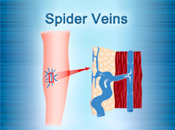 Spider Veins Treatment
