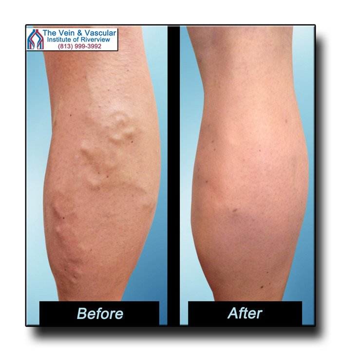Varicose Vein Treatment in Riverview FL Pictures