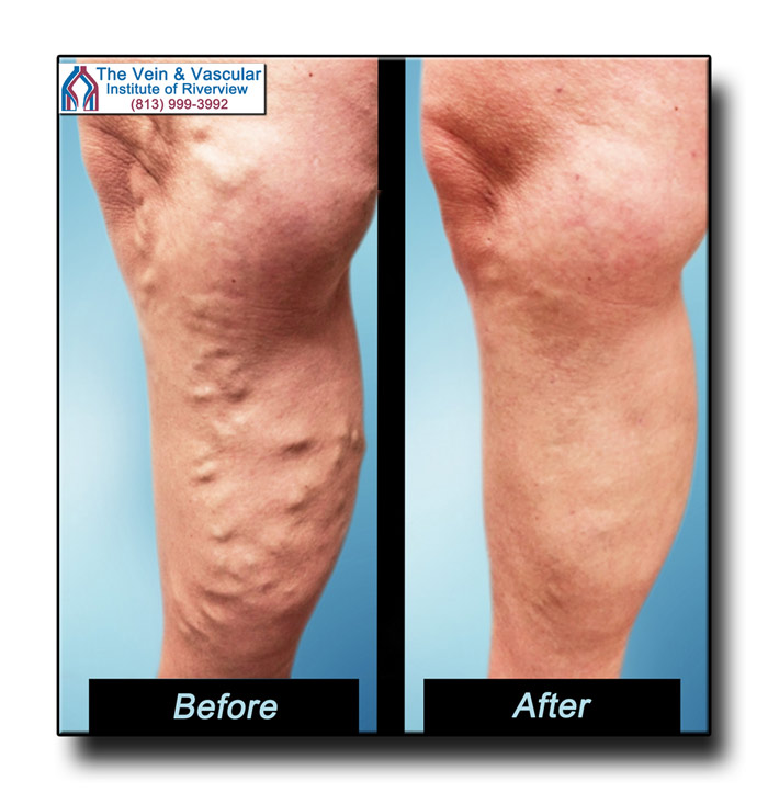 Vein Surgeon in Riverview FL Before and After Pictures