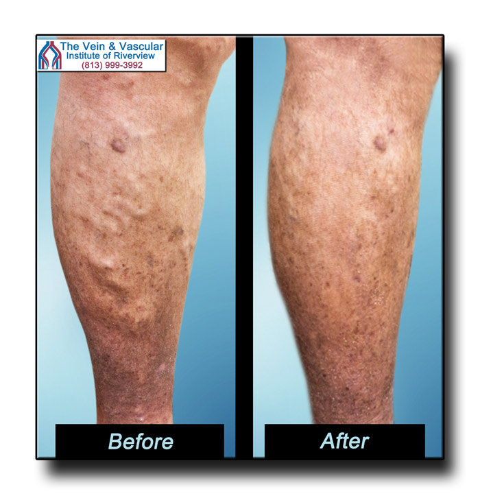 Vein Surgeon in Riverview FL Patient Before and After Pictures