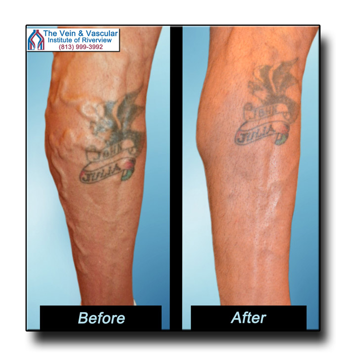Vein Treatment in Riverview FL Pictures