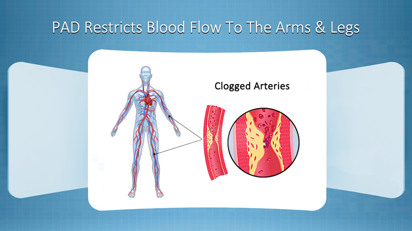 Peripheral Artery Disease Riverview FL