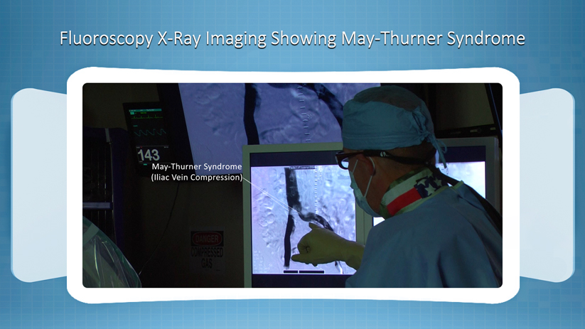May-Thurner Syndrome Radiology