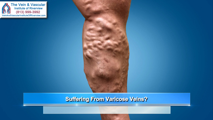 Do You Have Varicose Veins?
