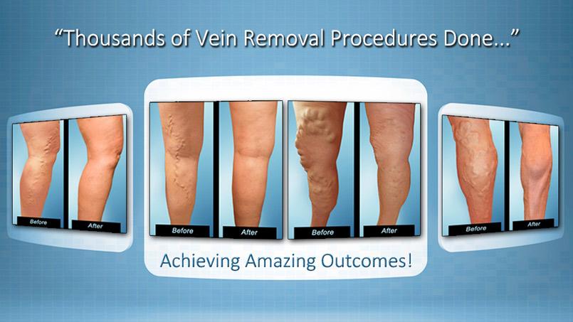 Varicose Veins Treatment Riverview FL