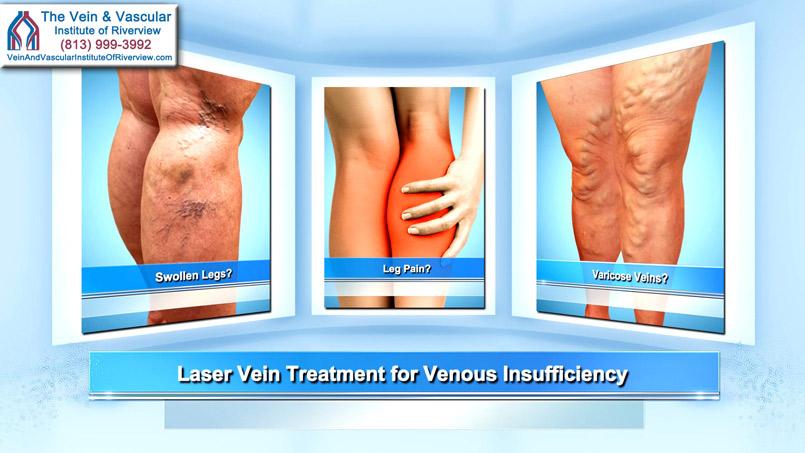 Laser Vein Treatment For Venous Reflux Riverview FL