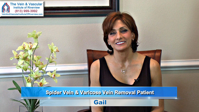 Spider Veins Treatment Riverview FL Patient - Review of Dr. Thomas Kerr