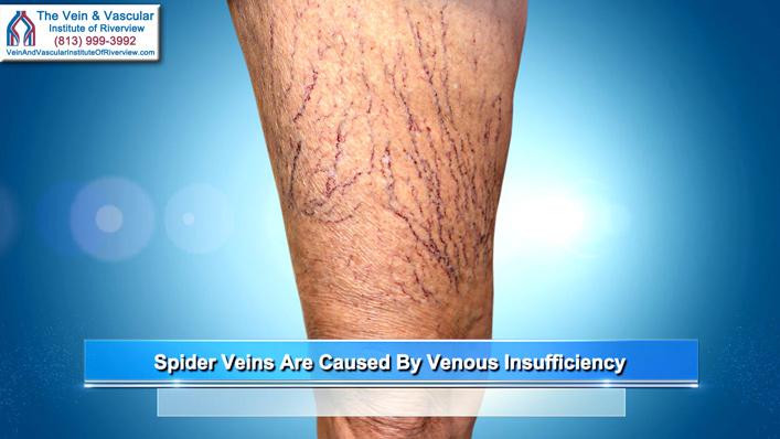 Dr. Kerr Explains Spider Veins