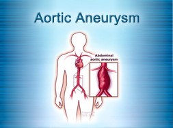 Aortic Aneurysm Surgery