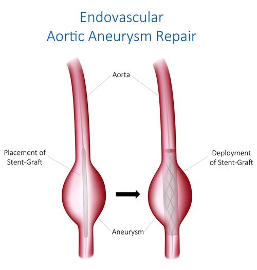 Endovascular Aortic Aneurysm Repair Tampa