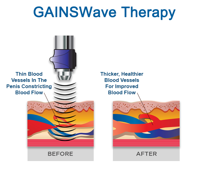 GAINSWave Therapy For ED Treatment Spring Hill Florida