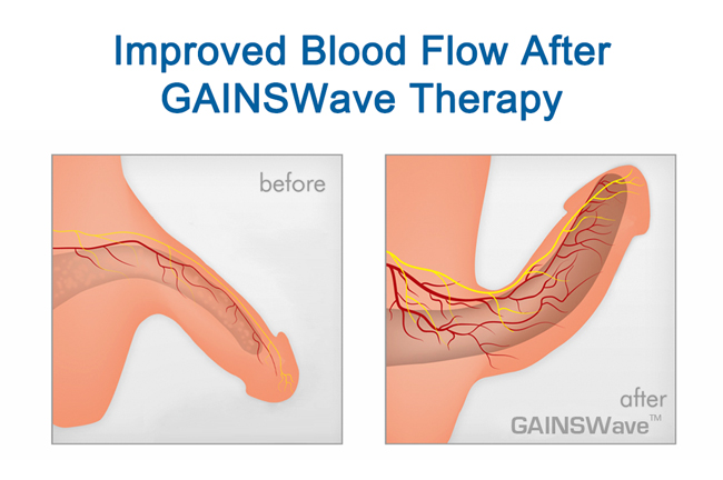 GAINSWave Treatment Spring Hill Florida Results