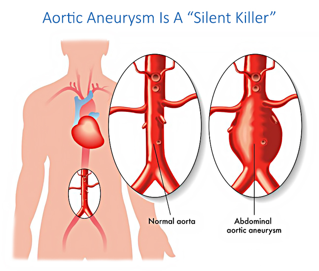 Aortic Aneurysm is a silent killer