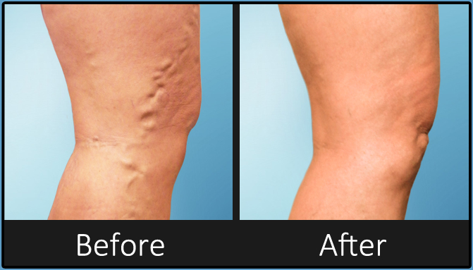 Varicose Veins Before and After Pictures