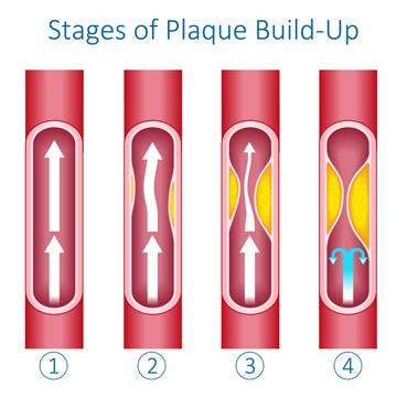 Carotid Artery Blockage
