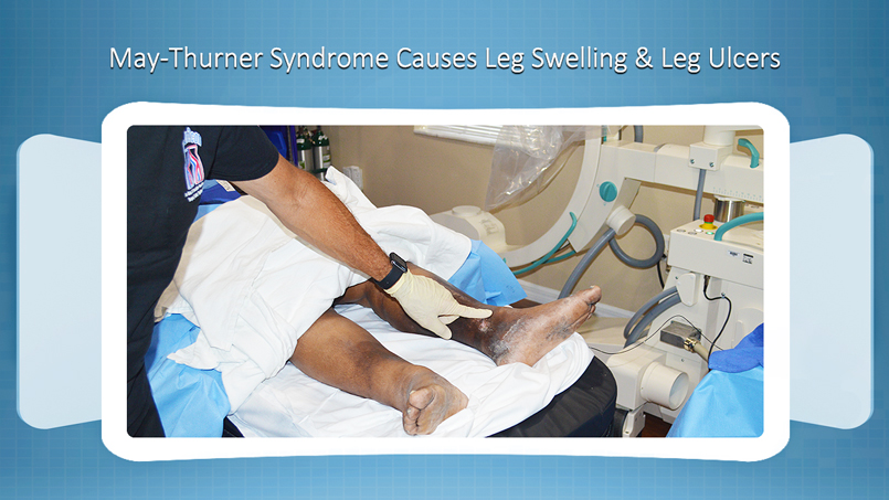 May-Thurner Syndrome Causes Leg Swelling and Leg Ulcers