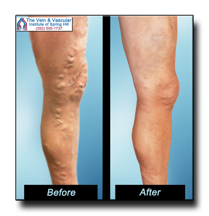 Varicose Vein Removal Results Using Laser Treatment Spring Hill FL