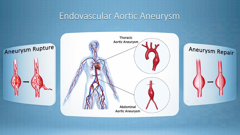 Aortic Aneurysm Surgery Spring Hill FL