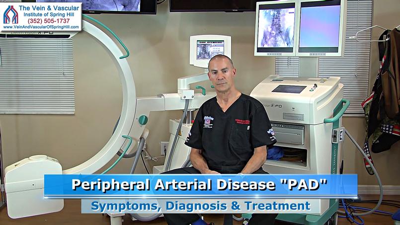 PAD Doctor Spring Hill FL