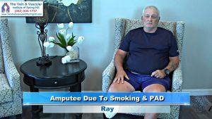 PAD and Amputation