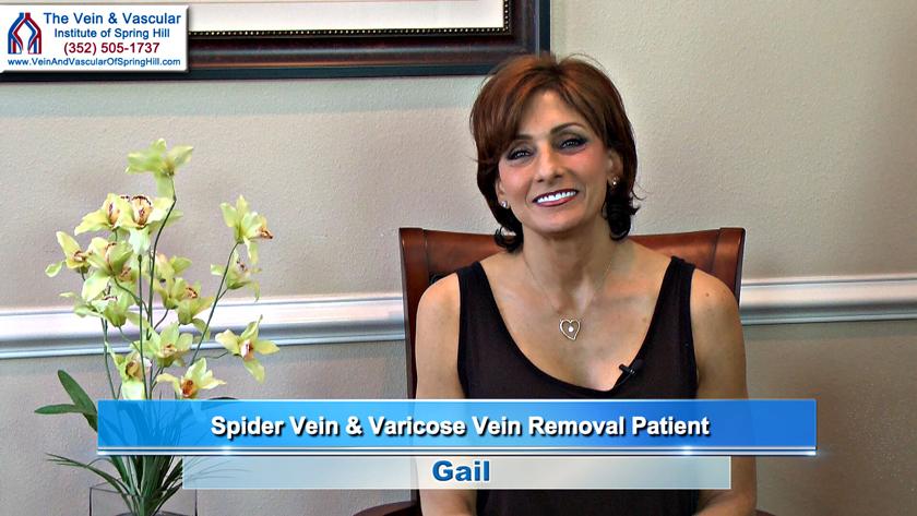 Spring Hill Spider Veins Treatment Patient