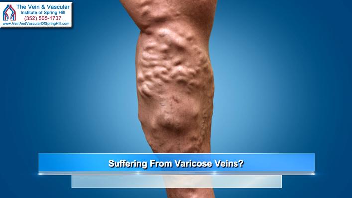 durere varicoasă în tratamentul picioarelor