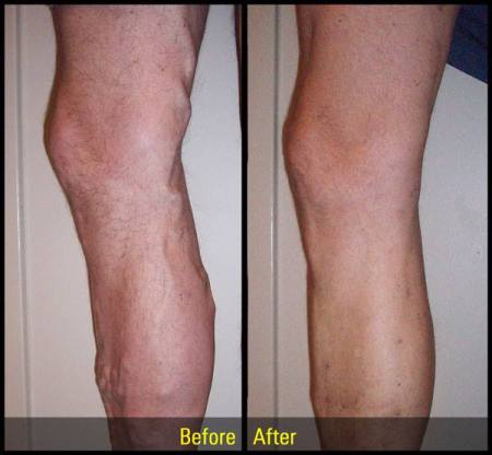 before and after vein treatment