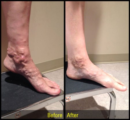 spider vein treatment philadelphia pa