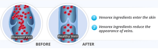 Venorex varicose veins treatment cream