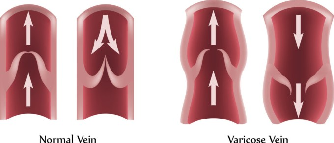 varicose veins explained
